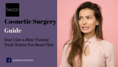 Don't Get a Mini-Tummy Tuck Unless You Read This