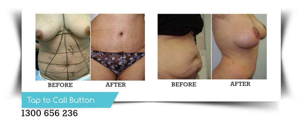 before-and-after-tummy-tuck-sydney-canberra-dr-daood1.png
