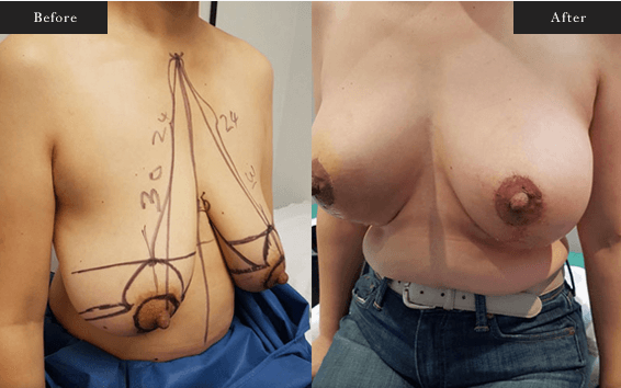 Before and After Gallery on Breastlift Service Results Image 3 - Dr Daood Cosmetic Surgery