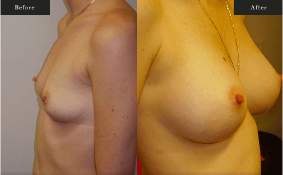 Before and After Gallery on Breast Lift Service Results Image 1.b - Dr Daood Cosmetic Surgery