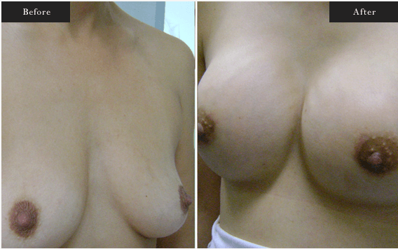 Before and After Gallery on Breastlift Service Results Image 2 - Dr Daood Cosmetic Surgery