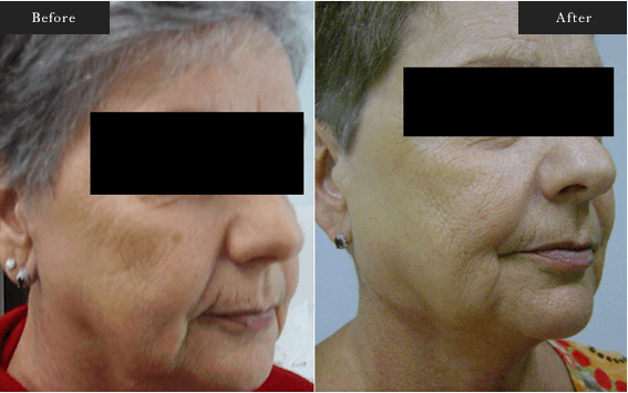 Before and After Gallery on Facelift Results Image 1 - Dr Daood Cosmetic Surgery