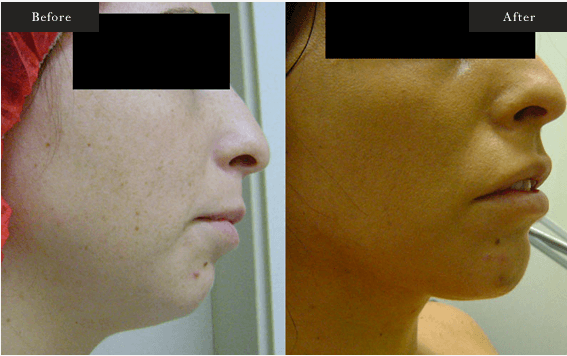 Before and After Gallery on Face Lift Service Results Image 2.a - Dr Daood Cosmetic Surgery