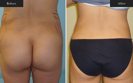 Before and After Gallery on Liposuction Service Results Image 1 - Dr Daood Cosmetic Surgery