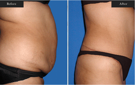 Before and After Gallery on Tummy Tuck Service Results Image 1.a - Dr Daood Cosmetic Surgery