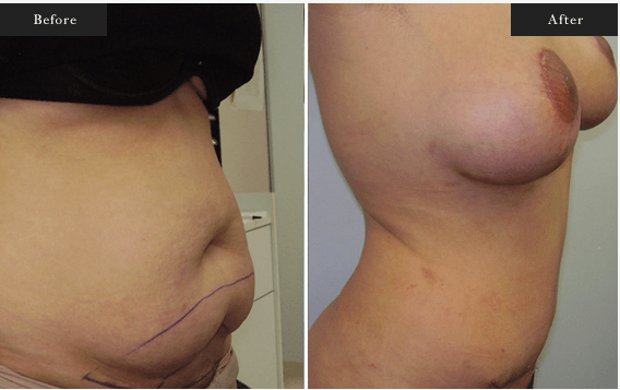 Before and After Gallery on Tummy Tuck Service Results Image 2 - Dr Daood Cosmetic Surgery