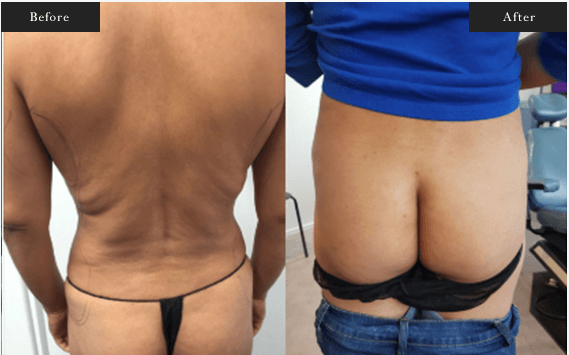 Before and After Gallery on Brazillian Butt Lift Service Results Image 1 - Dr Daood Cosmetic Surgery