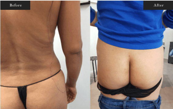 Before and After Gallery on Brazillian Butt Lift Service Results Image 2 - Dr Daood Cosmetic Surgery