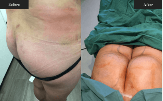 Before and After Gallery on Brazillian Butt Lift Surgery Service Results Image 3 - Dr Daood Cosmetic Surgery