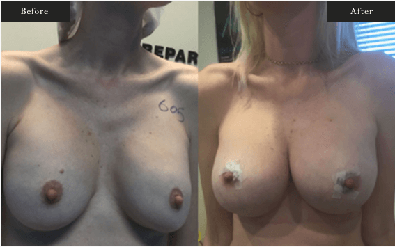 Before and After Gallery on Minor Breastlift Service Results Image 1 - Dr Daood Cosmetic Surgery