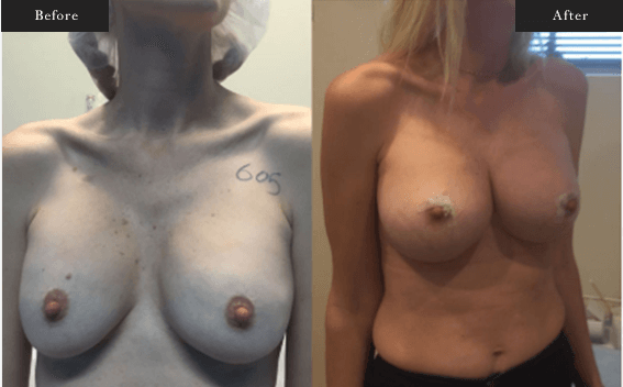 Before and After Gallery on Minor Breastlift Service Results Image 2 - Dr Daood Cosmetic Surgery
