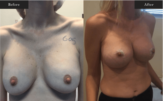 Before and After Gallery on Minor Breastlift Service Results Image 3 - Dr Daood Cosmetic Surgery