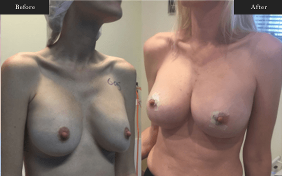 Before and After Gallery on Minor Breast Lift Service Results Image 4 - Dr Daood Cosmetic Surgery