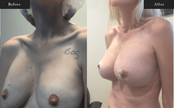 Before and After Gallery on Minor Breastlift Service Results Image 5 - Dr Daood Cosmetic Surgery