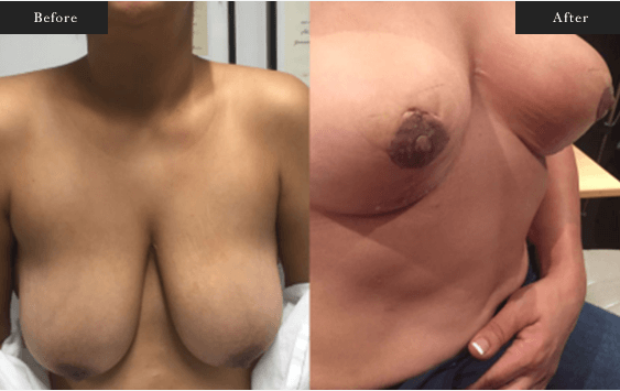 Before and After Gallery on Minor Breast Lift Service Results Image 6 - Dr Daood Cosmetic Surgery
