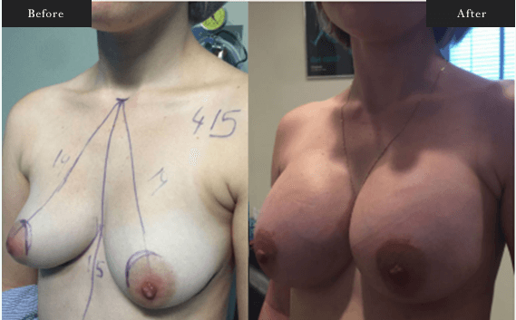 Before and After Gallery on Breast Augmentation Surgery Service Results Image 3 - Dr Daood Cosmetic Surgery