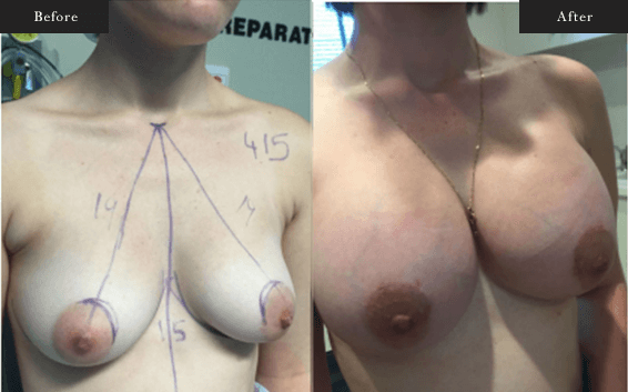 Before and After Gallery on Breast Augmentation Service Results Image 4 - Dr Daood Cosmetic Surgery