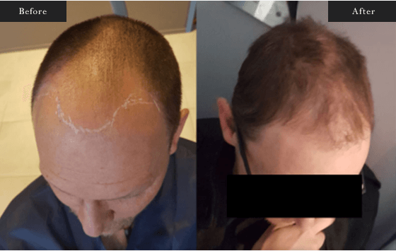 Before and After Gallery on FUT Hair Service Results Image 2 - Dr Daood Cosmetic Surgery