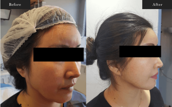 Before and After Gallery on Facelift Results Image 2 - Dr Daood Cosmetic Surgery