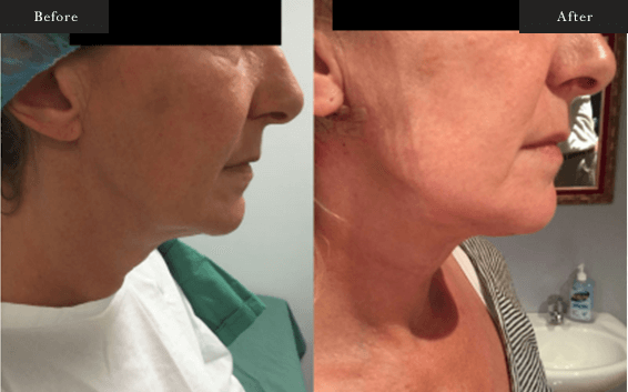 Before and After Gallery on Face and Neck Liposuction Service Results Image 4 - Dr Daood Cosmetic Surgery