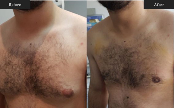 Before and After Gallery on Gynecomastia Surgery Service Results Image 1 - Dr Daood Cosmetic Surgery