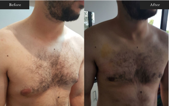 Before and After Gallery on Gynecomastia Service Results Image 2 - Dr Daood Cosmetic Surgery