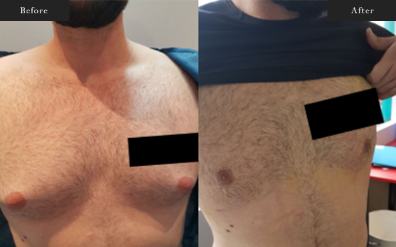 Before and After Gallery on Gynecomastia Service Results Image 3 - Dr Daood Cosmetic Surgery