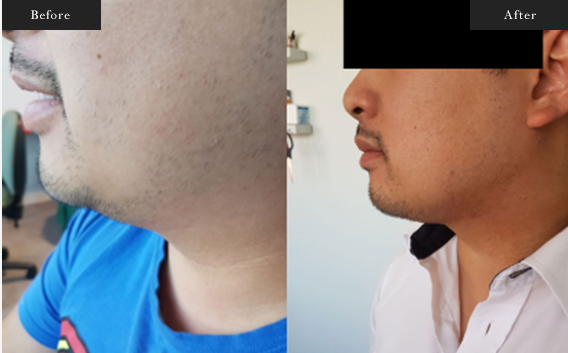 Before and After Gallery on Neck Liposuction Service Results Image 1 - Dr Daood Cosmetic Surgery