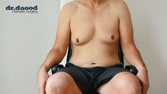 Dr Daood A Breakdown of Gynecomastia Surgery Cost in Sydney Blog Image