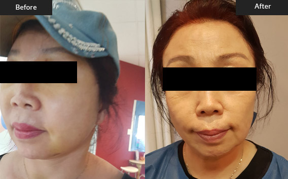 Before and After Gallery on Face Lift Service Results Image 2.b - Dr Daood Cosmetic Surgery