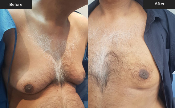 Before and After Gallery on Gynecomastia Service Results Image 4 - Dr Daood Cosmetic Surgery