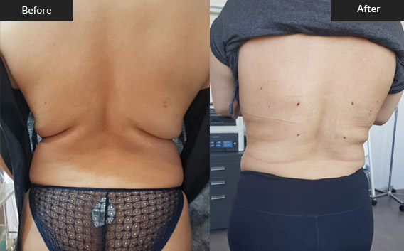 Before and After Gallery on Liposuction Surgery Service Results Image 2 - Dr Daood Cosmetic Surgery