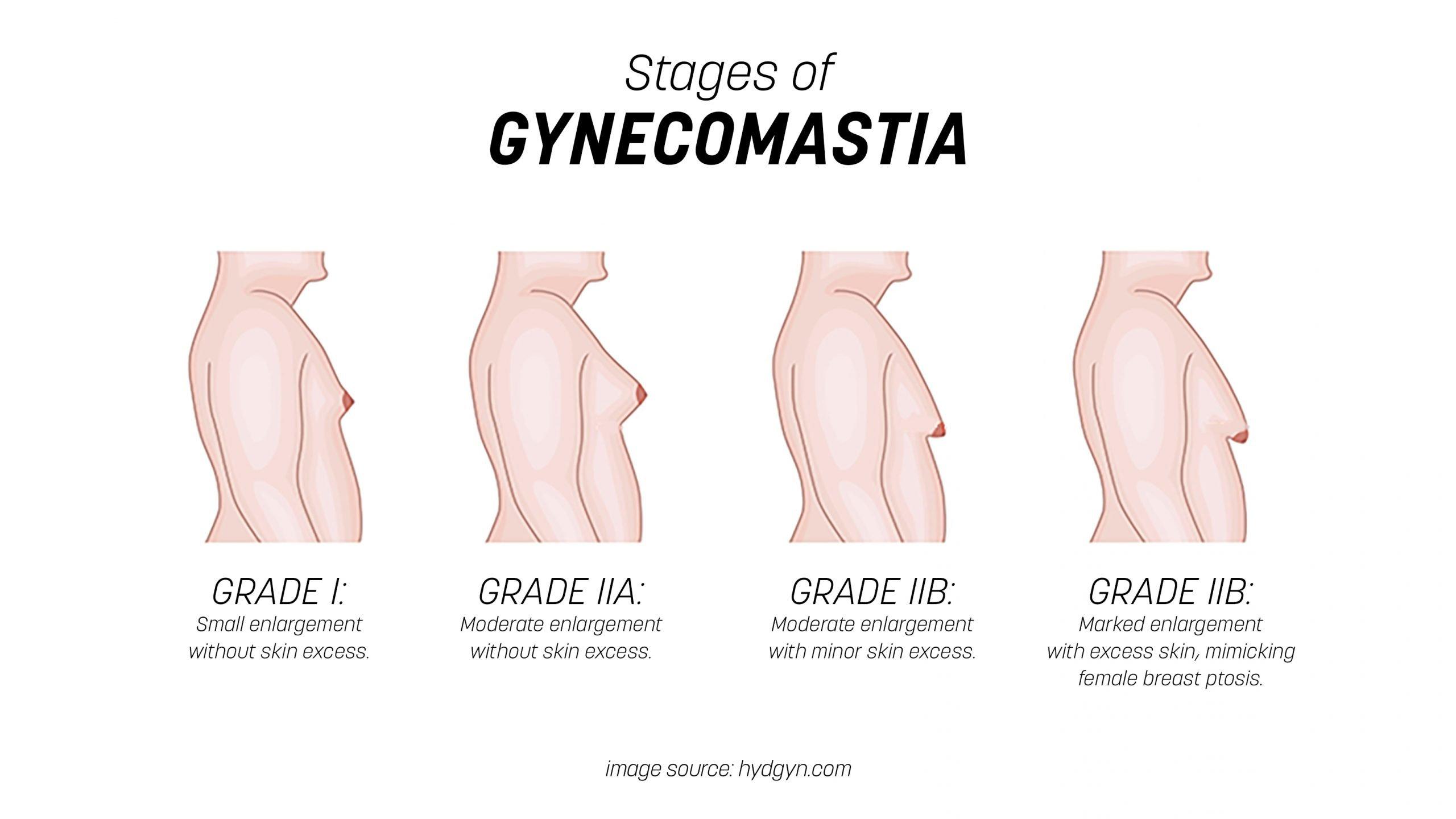 Stages of Gynecomastia