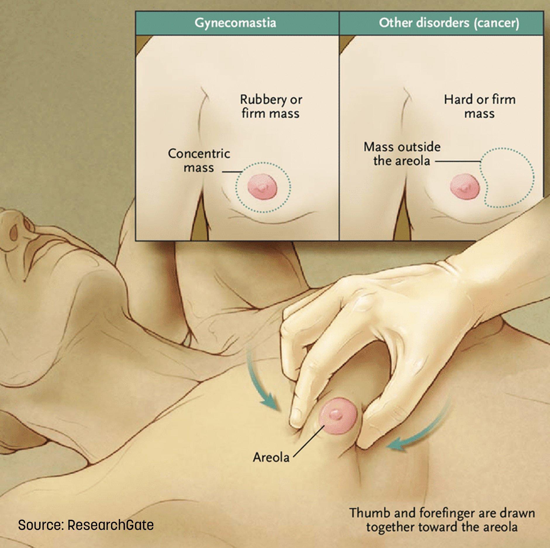 Gynecomastia Pinch Test